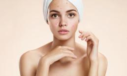 Hydrafacial tratamiento acne