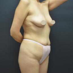 modelado-corporal-360